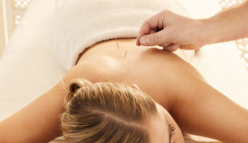 Insomnia may respond to acupuncture treatments