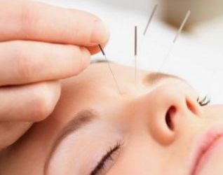 Insomnia may respond to treatment with acupuncture
